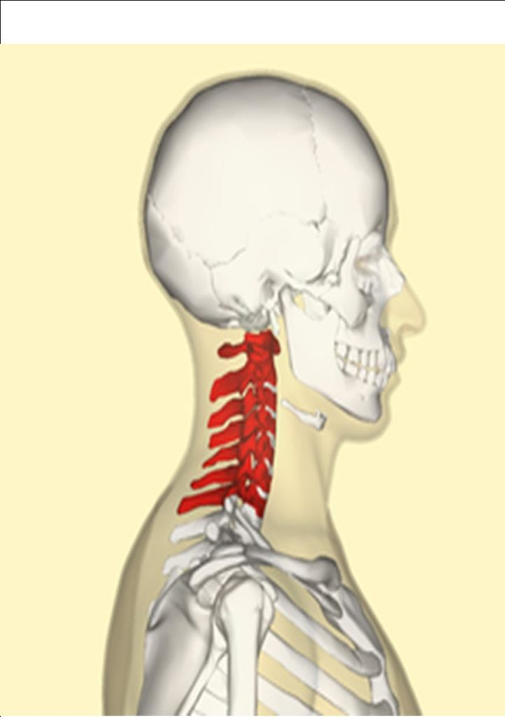 pinched nerve in neck treatment oakville chiropractor