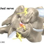 Adjustments For Your Pinched Nerve