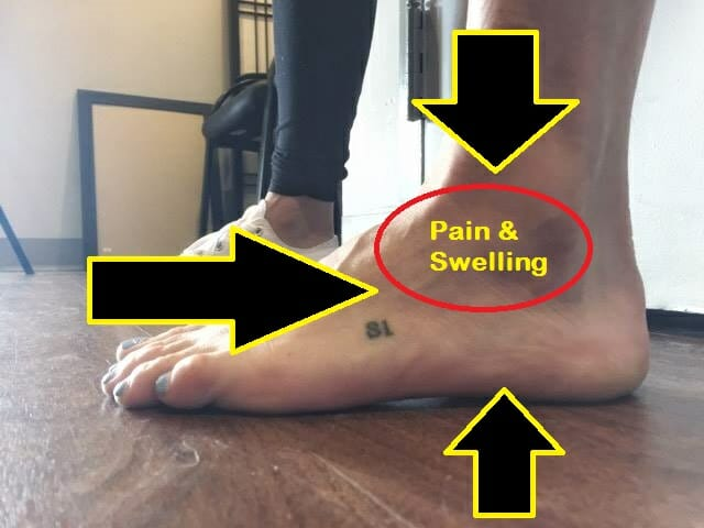 sinus tarsi treatment oakville picture of a foot with bruising and swelling on the outside of the ankle