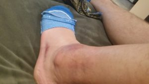 bad swollen ankle and compression stockings