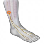 Acupuncture for Ankle Sprains