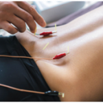 The Anatomy of an Acupuncture Treatment