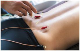 Acupuncture with stim for low back pain