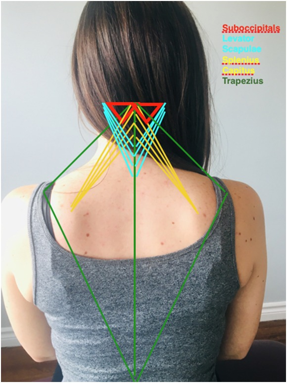 acupuncture for tight neck muscles