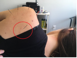 Acupuncture near me. Acupuncture pain treatment.