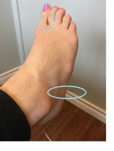 acupuncture for sinus tarsi syndrome oakville ankle sprain