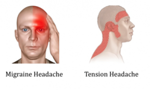 Oakville treatment for headaches acupuncture. a comic of a bald man holding his head with a migraine headache, red patch of pain over his eye. another comic of tension headache with the same guy red band wrapped around his head and into his neck showing where the headache can be felt