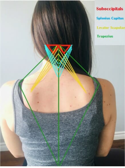overlay of 4 neck muscles on a female patient, including traps and levator muscles