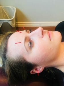 acupuncture needles points for headaches. female patient lying face up, on needle in her ear, three across the top of her eyebrows, the needles have red handles