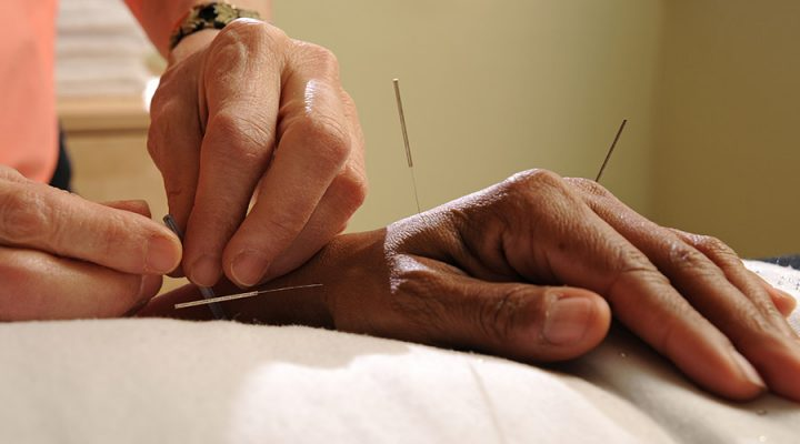 acupuncture near me. acupuncture pain treatment. pain relief