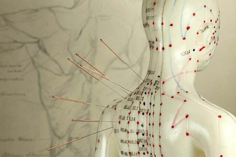 Acupuncture points by Dr. Jenn in Oakville
