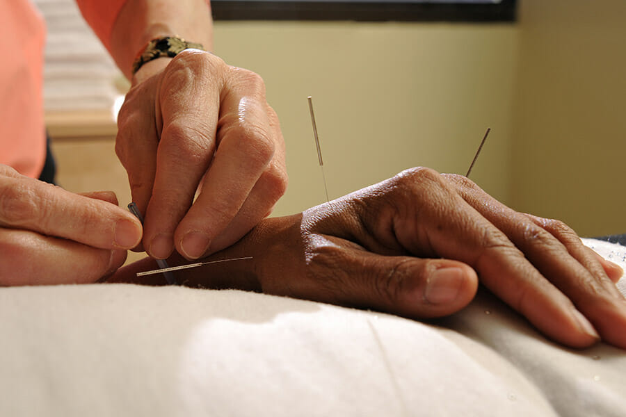 Oakville Acupuncture doctor putting three needles in patients left hand