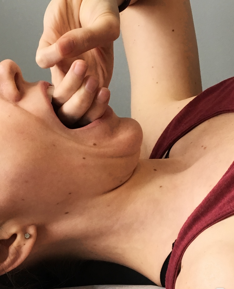 tmj test 3 fingers in mouth treatment oakville