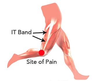 ITB Syndrome Treatment in Oakville