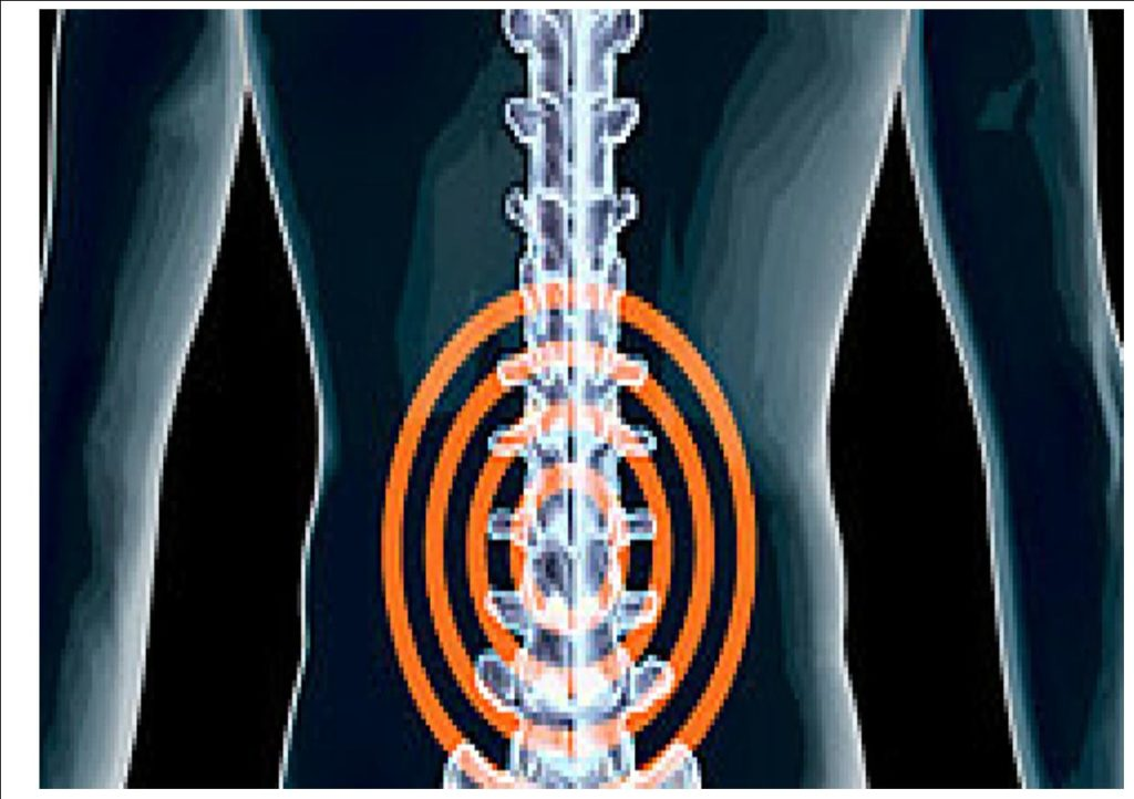 spine pain and spinal stenosis