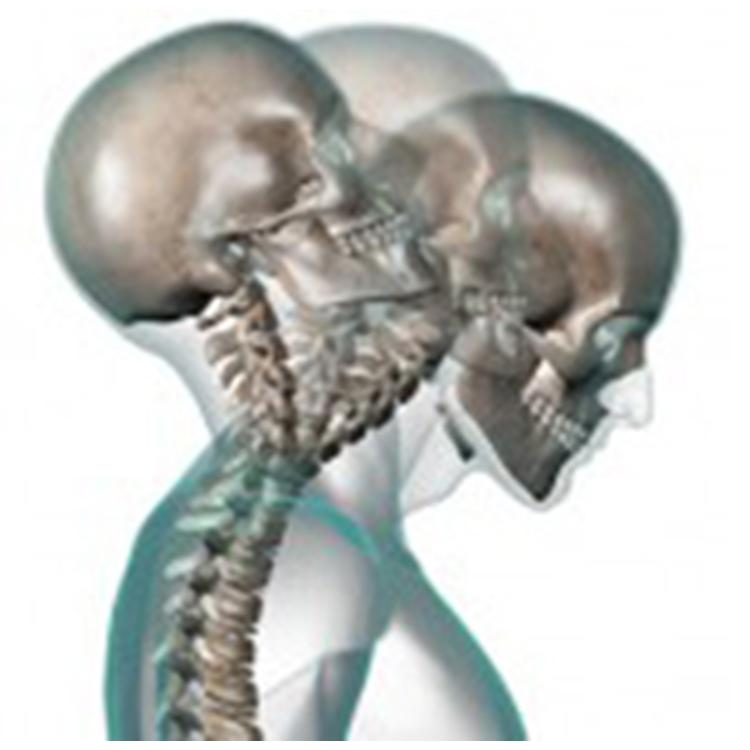 acupucture treatment neck pain oakville whiplish