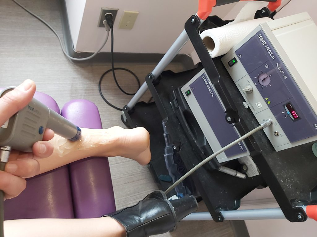 shockwave application for heel pain and plantar fasciitis at our oakville chiropractic clinic