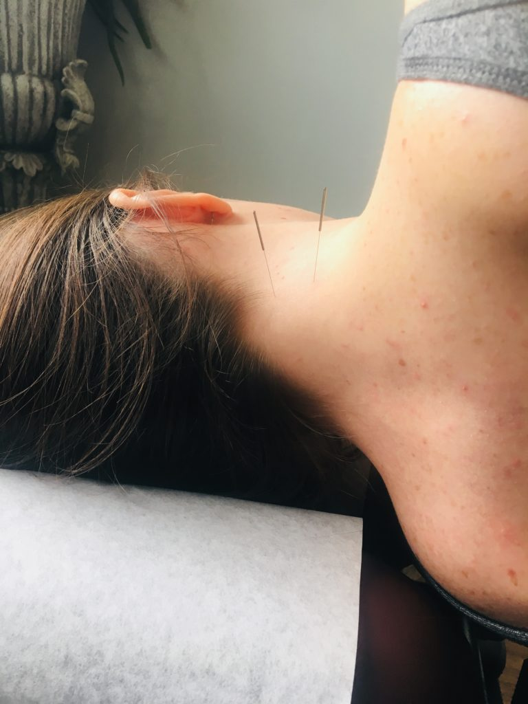 acupunture needles in the neck of a female patient