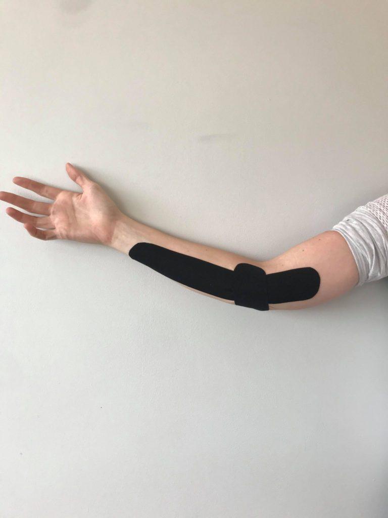 oakville chiropractor golfer's elbow treatment